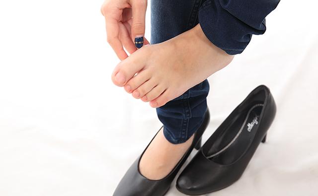 【脚・ひざ】合わないパンプスで外反母趾ぎみの女性の足